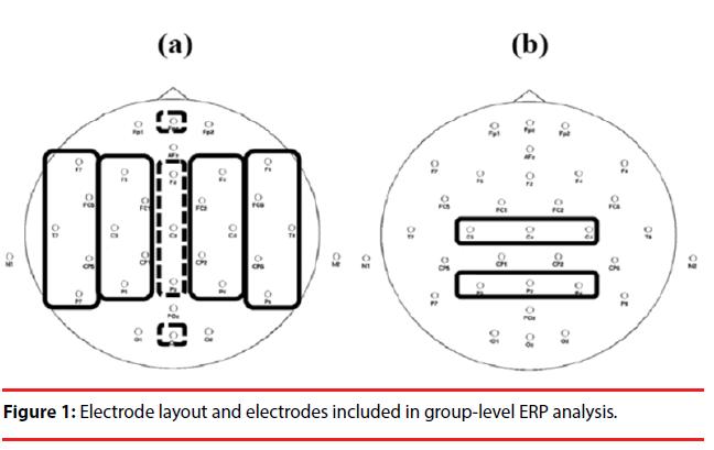 neuropsychiatry-Electrode-layout