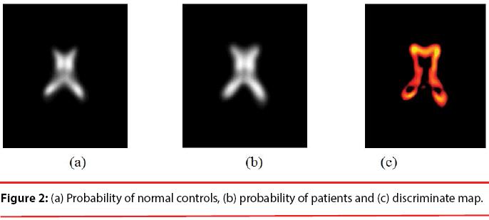 neuropsychiatry-Probability-normal-controls
