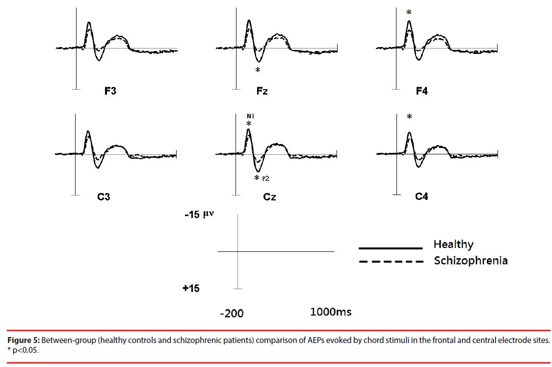 neuropsychiatry-comparison-AEPs