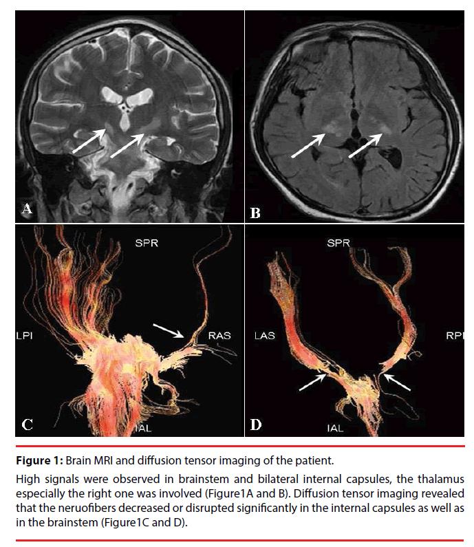 neuropsychiatry-diffusion-tensor