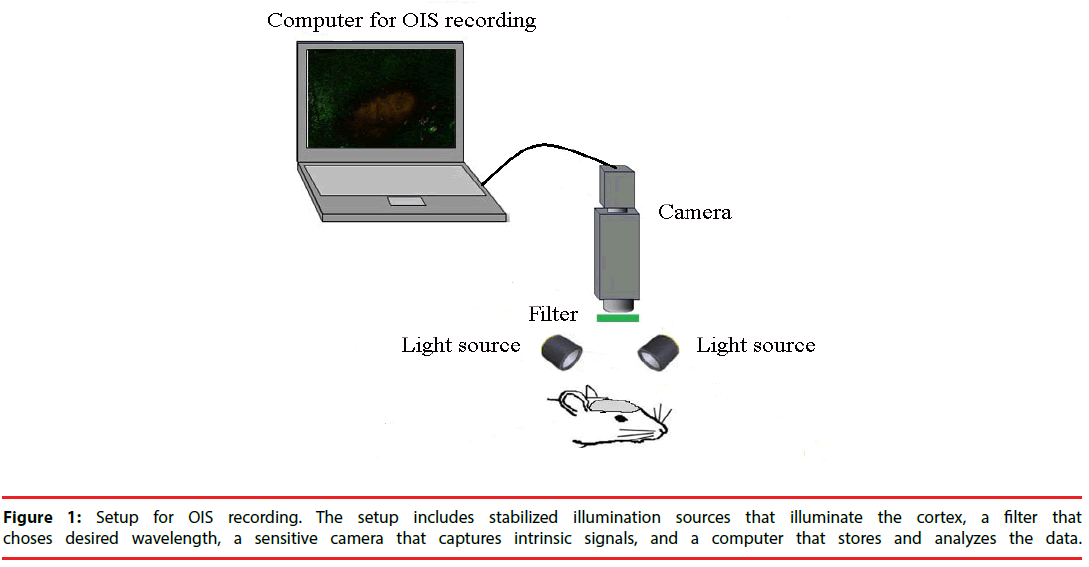 neuropsychiatry-sensitive-camera
