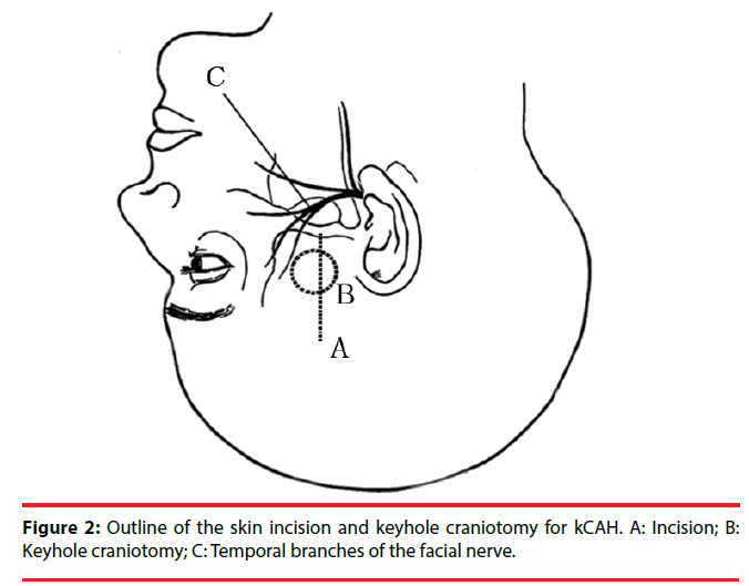 neuropsychiatry-skin-incision